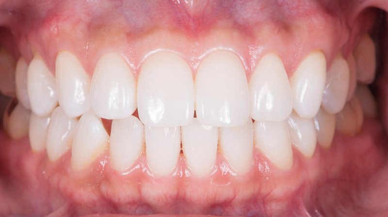 After teeth whitening smile of a patient at Pacific Modern Dentistry