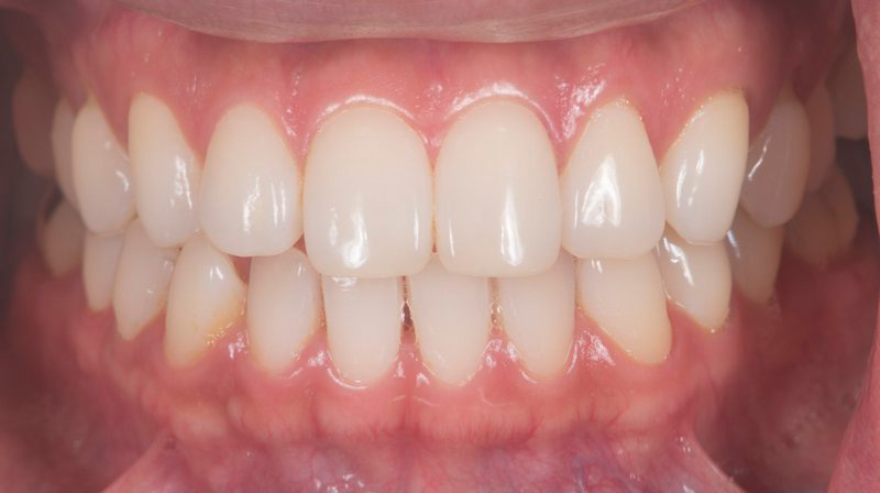 Before teeth whitening smile of a patient at Pacific Modern Dentistry