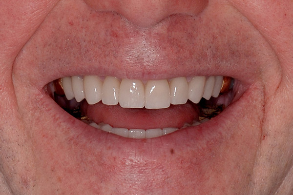 After Comprehensive Rehabilitation smile of a patient at Pacific Modern Dentistry