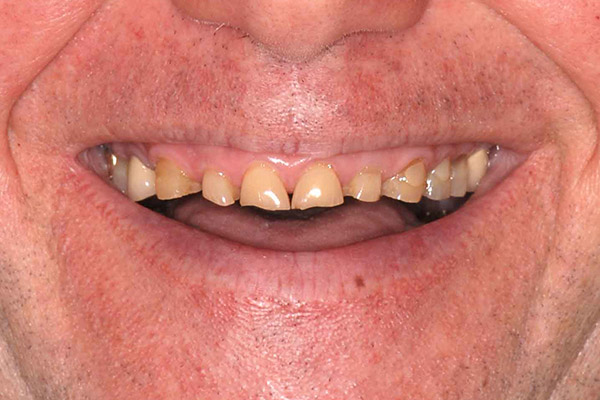 Before Comprehensive Rehabilitation smile of a patient at Pacific Modern Dentistry