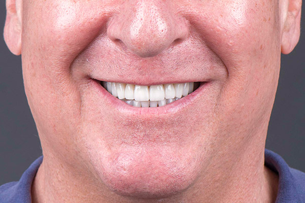 After Conservative Rehabilitation smile of a patient at Pacific Modern Dentistry