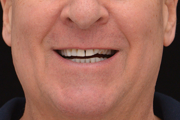 Before Conservative Rehabilitation smile of a patient at Pacific Modern Dentistry