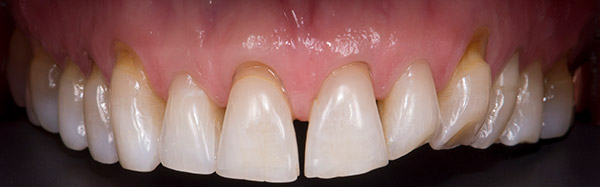 Before Conservative Rehabilitation teeth of a patient at Pacific Modern Dentistry