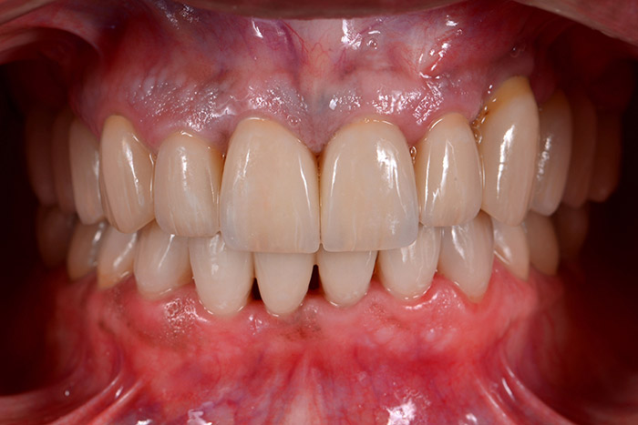 After Comprehensive Rehabilitation teeth of a patient at Pacific Modern Dentistry