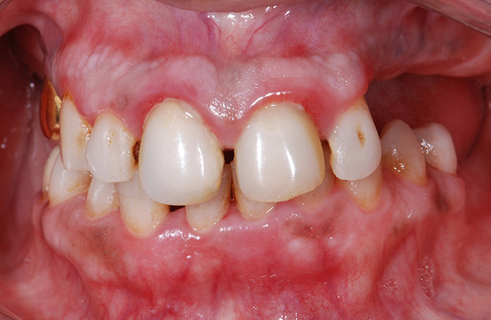 Before Comprehensive Rehabilitation teeth of a patient at Pacific Modern Dentistry