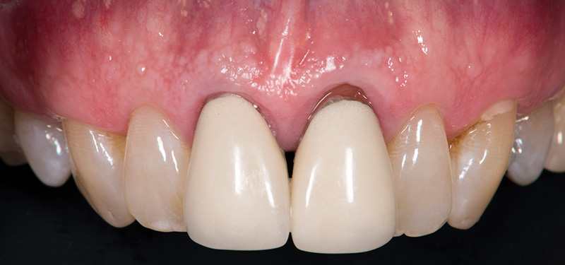 Before Ceramic Crowns teeth of a patient at Pacific Modern Dentistry
