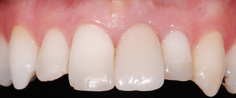 Before Implant and Ceramic Crowns teeth of a patient at Pacific Modern Dentistry