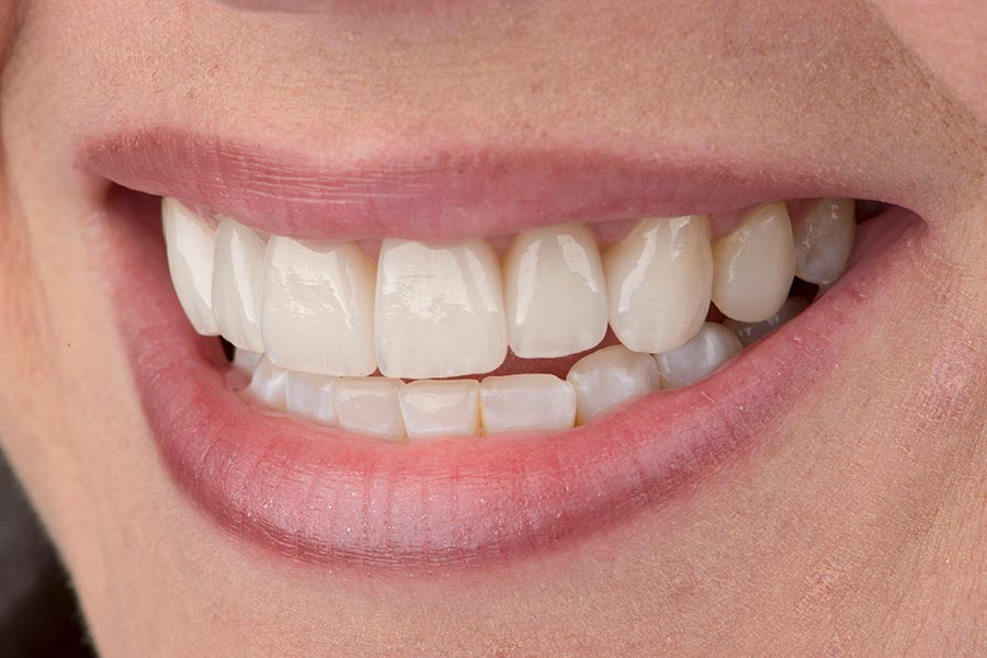 A patient's teeth After Ceramic Crowns by Seattle dentist at Pacific Modern Dentistry.