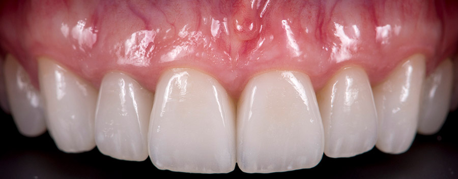 After Ceramic Crowns smile of a patient at Pacific Modern Dentistry