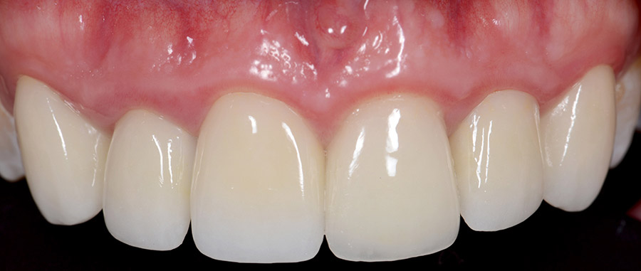 Before Ceramic Crowns smile of a patient at Pacific Modern Dentistry