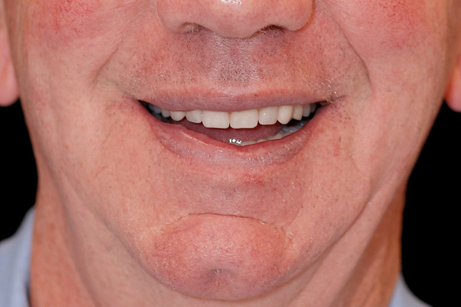 After CComplete Denture with Implants teeth of a patient at Pacific Modern Dentistry