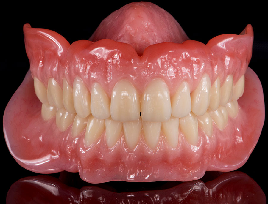 After Complete Denture with Implants smile of a patient at Pacific Modern Dentistry