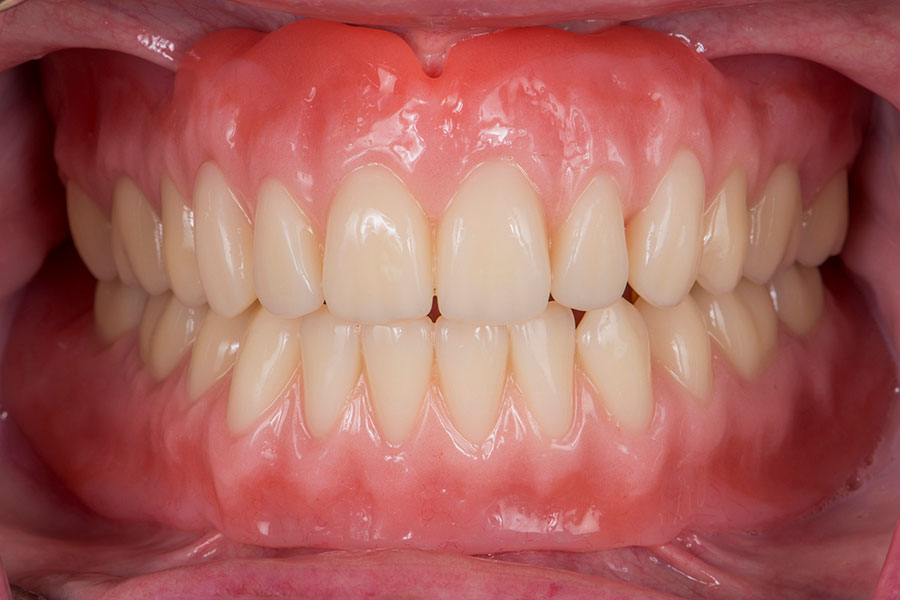 Before Complete Denture with Implants teeth of a patient at Pacific Modern Dentistry