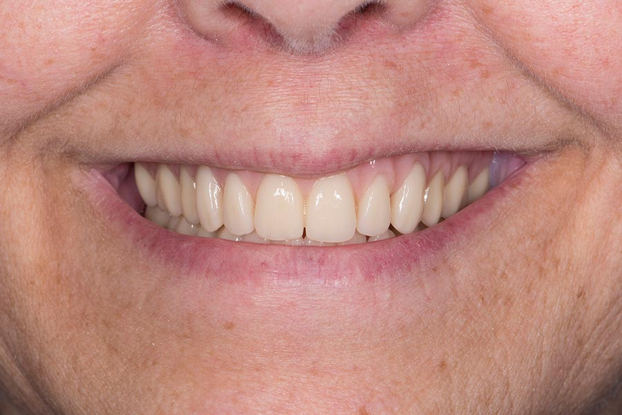After Complete Denture with Implants teeth of a patient at Pacific Modern Dentistry