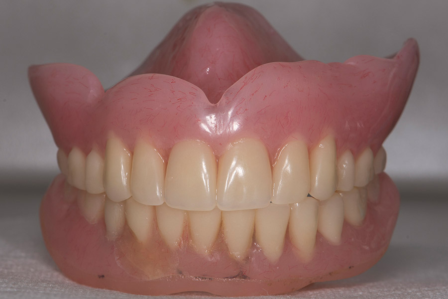 Before Complete Denture with Implants smile of a patient at Pacific Modern Dentistry