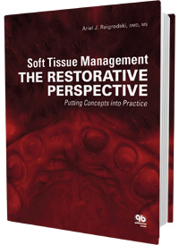 Cement retained implant support restoration chapter by Dr. Kim in book about soft tissue management