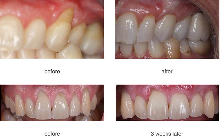 Before and after smile images of Pinhole gum rejuvenation by Seattle dentist at Pacific Modern Dentistry.
