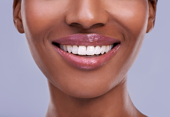 A woman smiling after receiving dental implants at Pacific Modern Dentistry in Seattle, WA