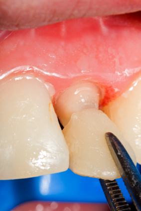 How to Properly Care for Your Dental Veneers