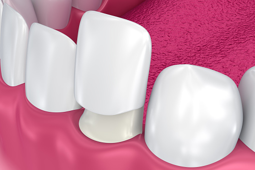 Veneers model image used by Seattle dentist at Pacific Modern Dentistry.