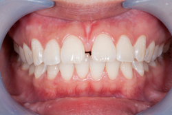 Gapped teeth with excess gum tissue of a dental patient of Seattle dentist at Pacific Modern Dentistry in Seattle, WA.