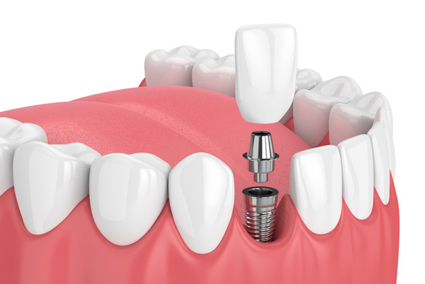 A diagram of a dental implant available at Pacific Modern Dentistry in Seattle, WA