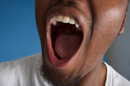 What Happens When Your Gums Dry Out?