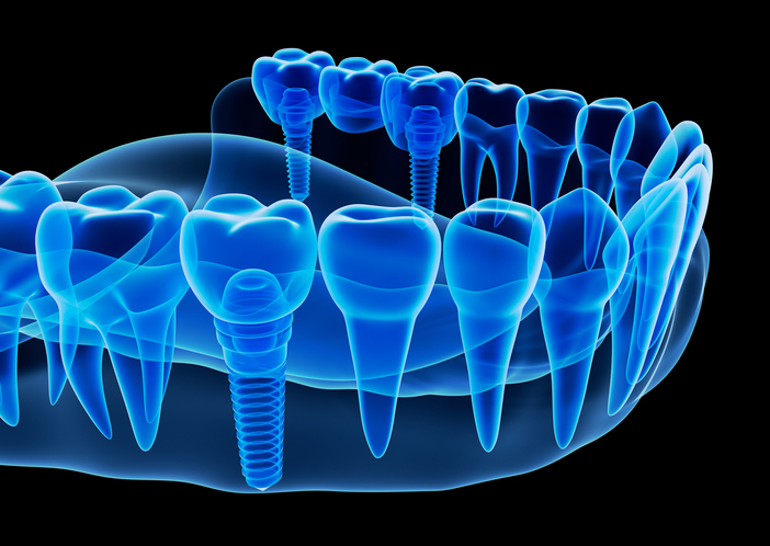 Multiple single tooth implant diagram used by Seattle dentist at Pacific Modern Dentistry.