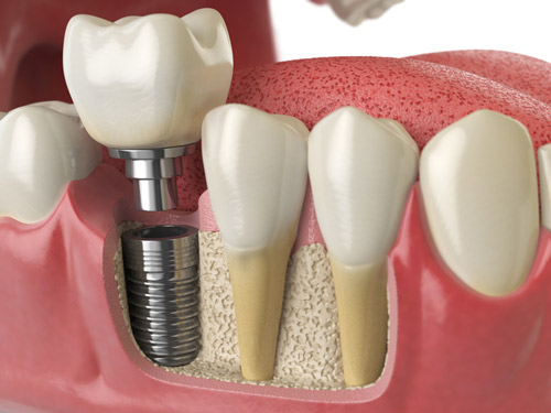 Diagram of Graft at the base of dental implant by Seattle dentist at Pacific Modern Dentistry.
